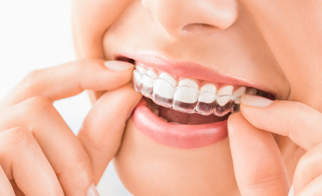 What happens during teeth whitening treatment?